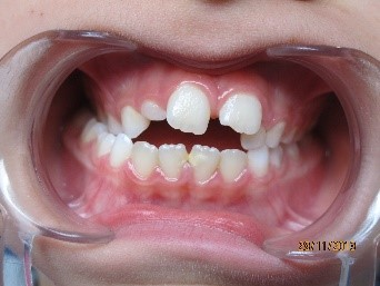 orthodontie enfant 4